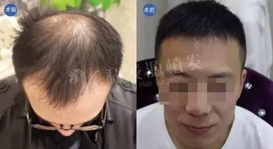 植发后有效果吗,植发后头发还会掉吗?