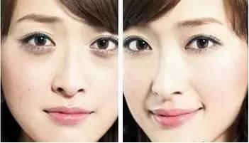 面部自体脂肪填充 表情会不自然吗?