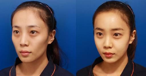 面部自体脂肪填充有什么后遗症吗?