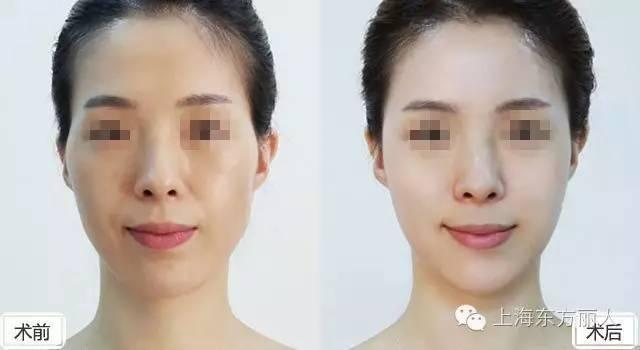 脸部埋线提升多少钱,多久见效?