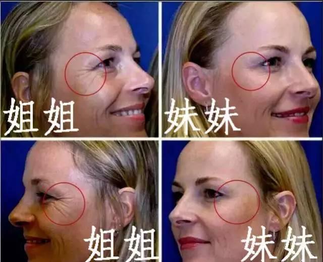 肉毒素瘦脸对身体有什么副作用吗,会反弹不?