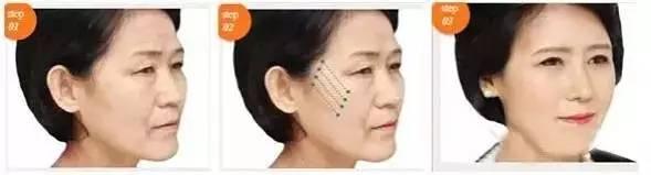 脸部埋线提升到底有没有副作用?