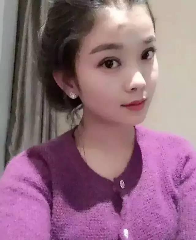 做韩式双眼皮后多久能消肿?