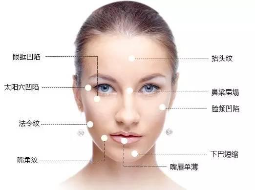 玻尿酸填充苹果肌多少钱,脸会肿吗?