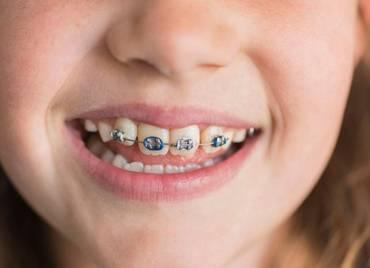 牙齿矫正会不会伤牙?