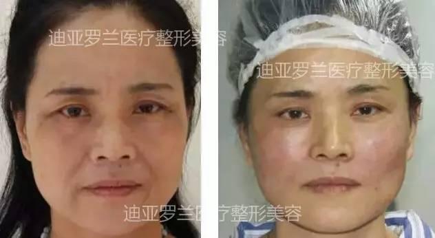 假体隆鼻后多久可以恢复?