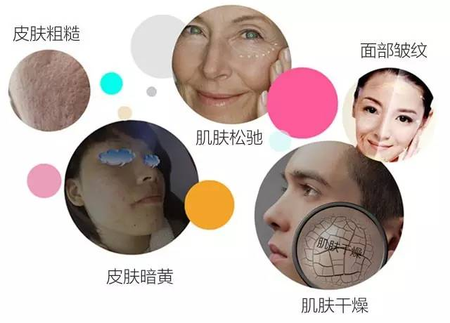打瘦脸针有没有副作用呢?