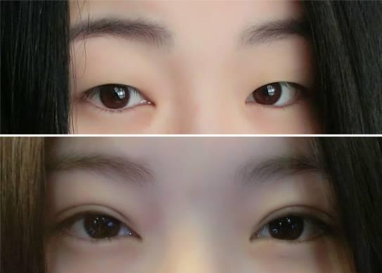 韩式双眼皮术后会肿多久?
