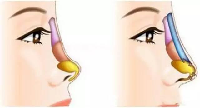 玻尿酸隆鼻与假体隆鼻哪种好?
