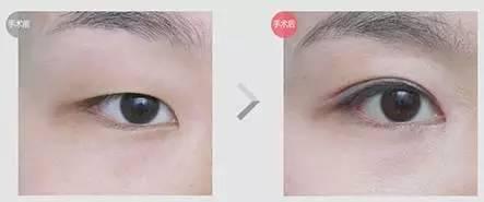 埋线双眼皮能保持多久呢?