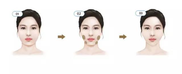 瘦体蛋白注射瘦脸效果明显吗?