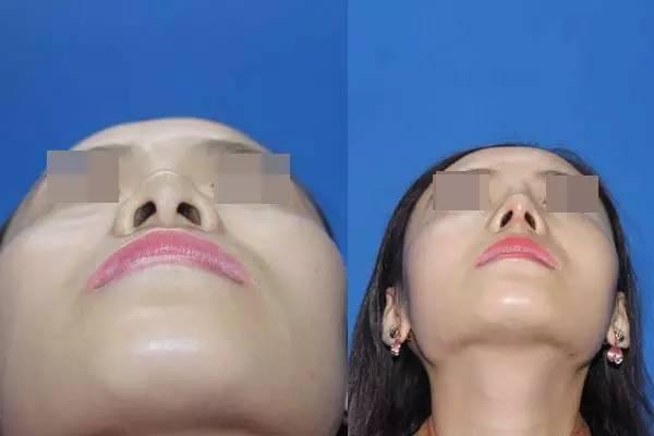 肋软骨隆鼻会不会吸收?