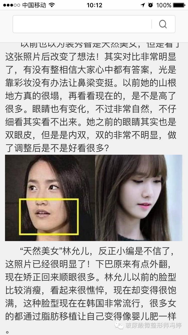 韩式双眼皮术后要不要拆线?