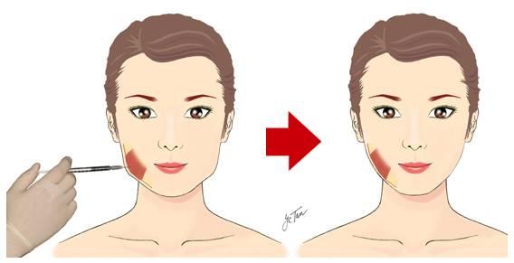 玻尿酸注射隆鼻价格多少,注射隆鼻效果持续多久?