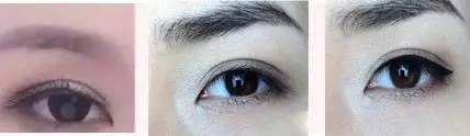 韩式部分切开双眼皮能保持多久?