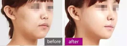 镭射净肤是什么,效果怎么样?