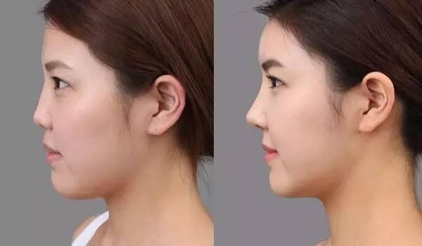 假体隆鼻后能抠鼻孔吗?