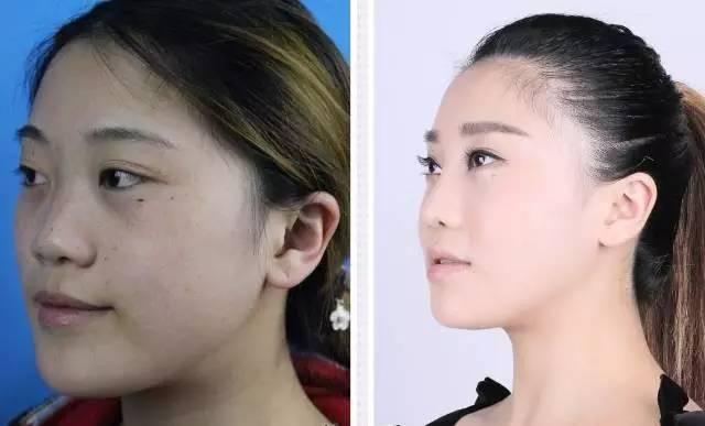 假体隆鼻效果怎么样,贵不贵呢?