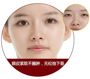 哪种双眼皮比较自然啊?