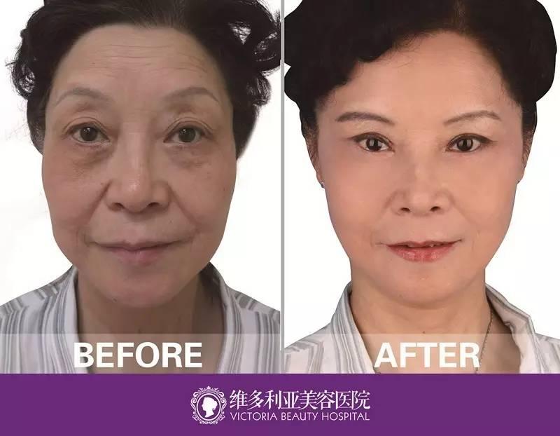 面部除皱哪里做的好啊?