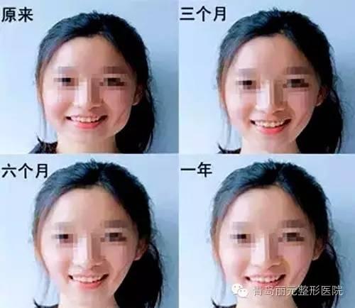 打瘦脸针危害有没有呢?