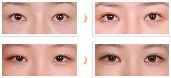 埋线双眼皮术后多久能化妆?