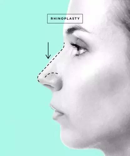 膨体隆鼻有什么后遗症吗?