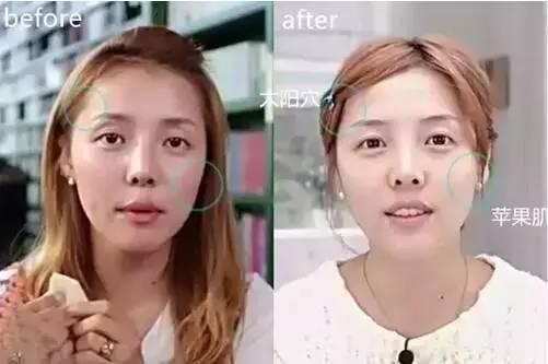 埋线提升全脸效果怎么样?