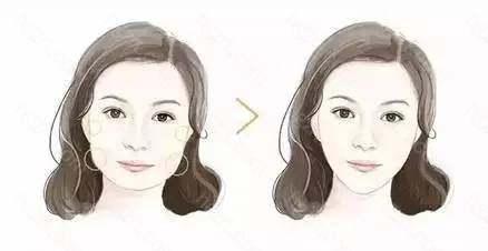 一针瘦脸精V诱惑瘦脸针实际上是A型肉毒素针剂