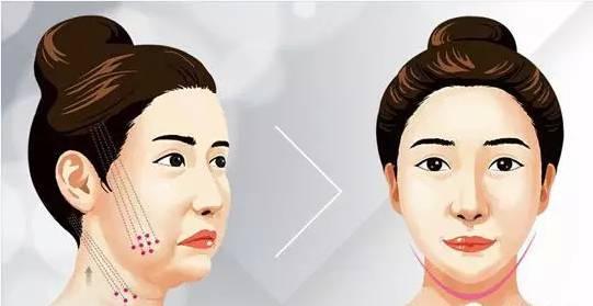 V脸提紧减龄效果术怎么样?