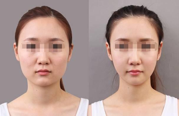 瘦脸针有什么后遗症吗?