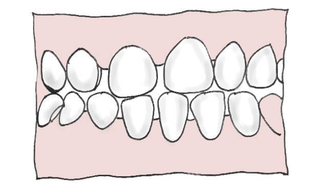成年人能做牙齿矫正么?