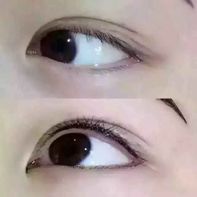 双眼皮手术有哪几种?哪种长期?