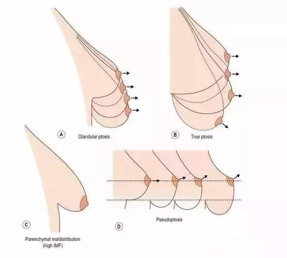 假体隆胸效果好吗?
