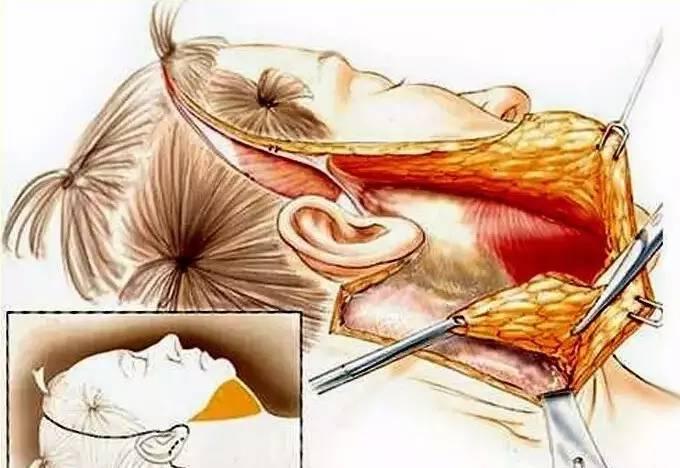什么是微创除皱手术?