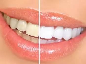 牙齿瓷贴面贵不贵啊?