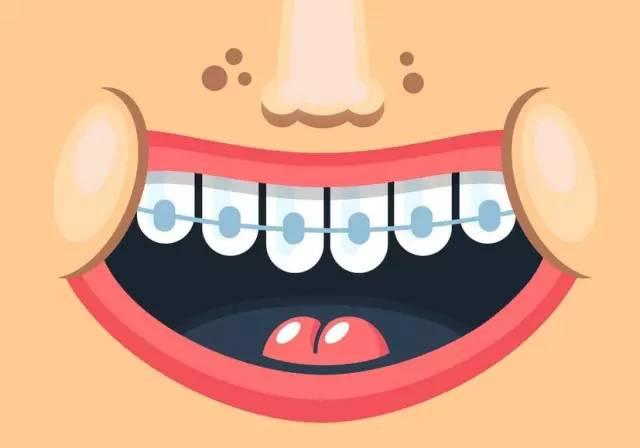 孕妇可以做牙齿矫正吗?