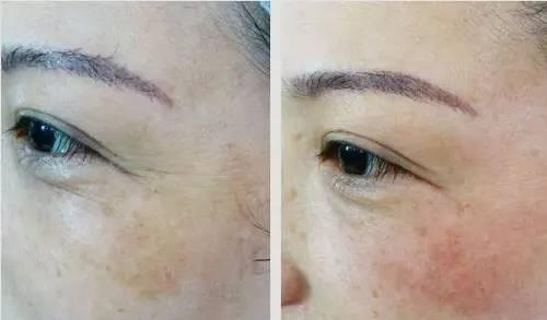 已经产生的眼下皱纹怎样去除?