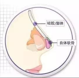 硅胶假体隆鼻安全吗?