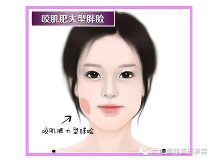 割双眼皮需要多宽比较好啊?