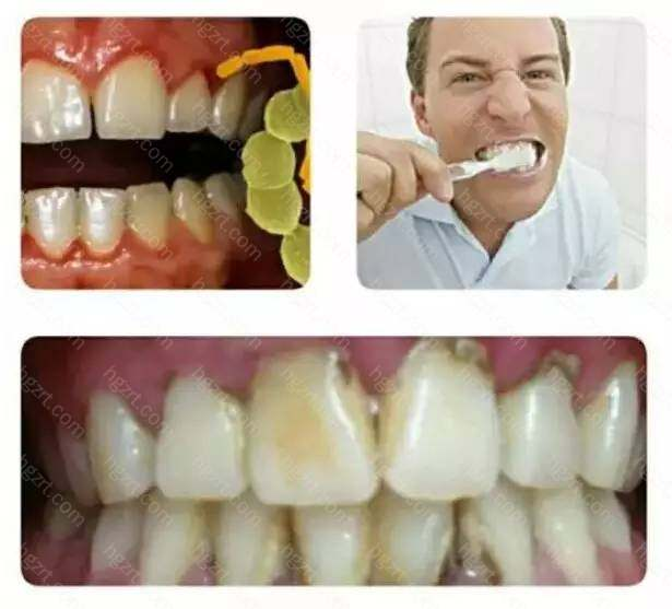 微生物是引发慢性牙周炎的始动因子