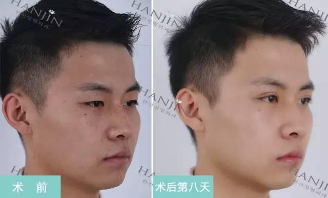 双眼皮一般多久能恢复自然?