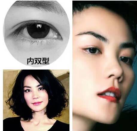 欧式双眼皮效果怎么样?
