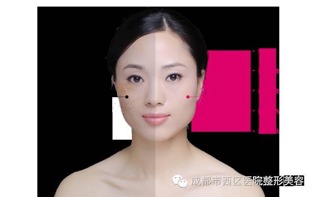 怎么样才能彻底去除脸上的色斑呢?