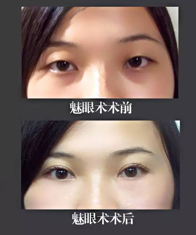 开眼角会留疤吗?