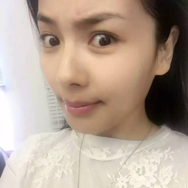 韩式双眼皮整形痛不痛呢?