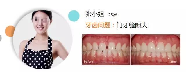 牙齿矫正方法有哪些?