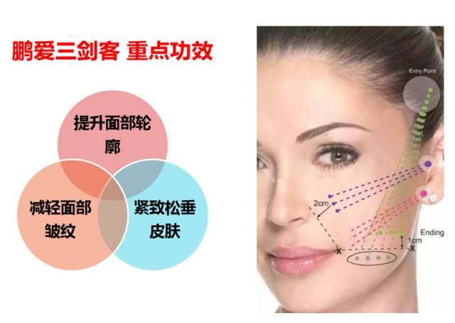 线雕隆鼻是什么,效果明显吗?