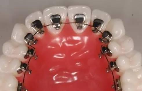 矫正牙齿要多少费用?