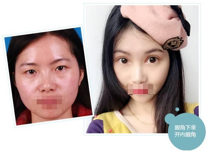 假体隆鼻效果怎么样?
